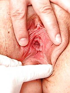 Зрелый врач заглянул во влагалище пациентки